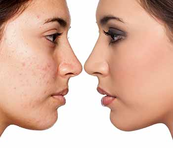 Treating Acne for Healthier Skin